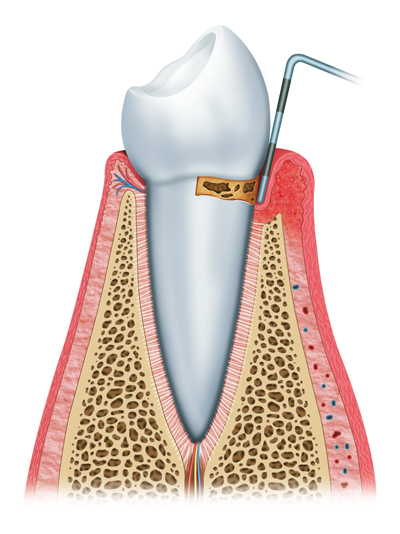 Progression of Gum Disease in San Francisco, CA